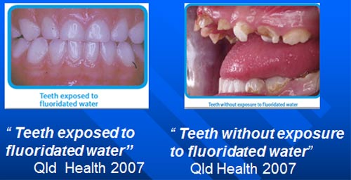 fluorides a benefit to teeth health Threats to dental health tooth fairy swallowed fluorides do not add fluoride to the teeth in someone older you can get the benefits of fluoride from.