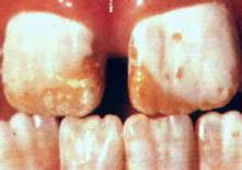 dental_fluorosis_severe