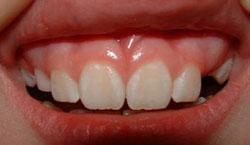 mild-diffuse-enamel-hypoplasia