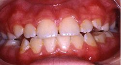 normal-dental-enamel
