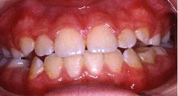 normal-dental-enamel