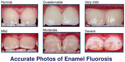 Accurate-Photos-of-Fluorosi