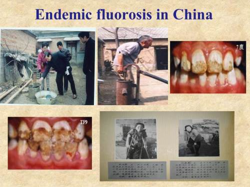 xiang-Endemic fluorosis