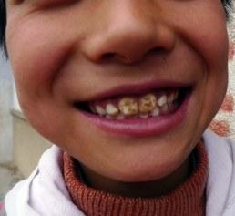 DentalFluorosis